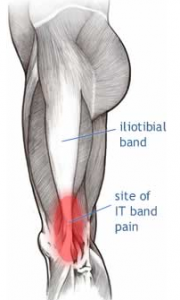 itb site of pain
