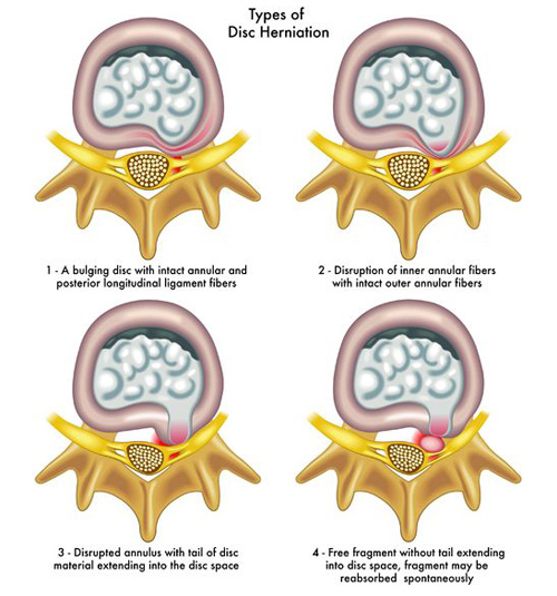 herniated-disc-types